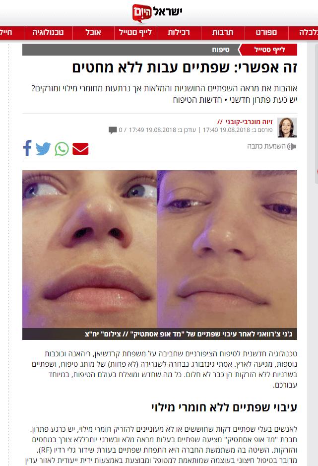 טיפול עיבוי ותיחום שפתיים