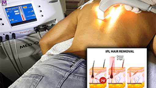 twinlight RF Flash device hair removal