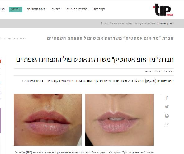 התפחה ועיבוי שפתיים של מד-אופ כתבה באתר